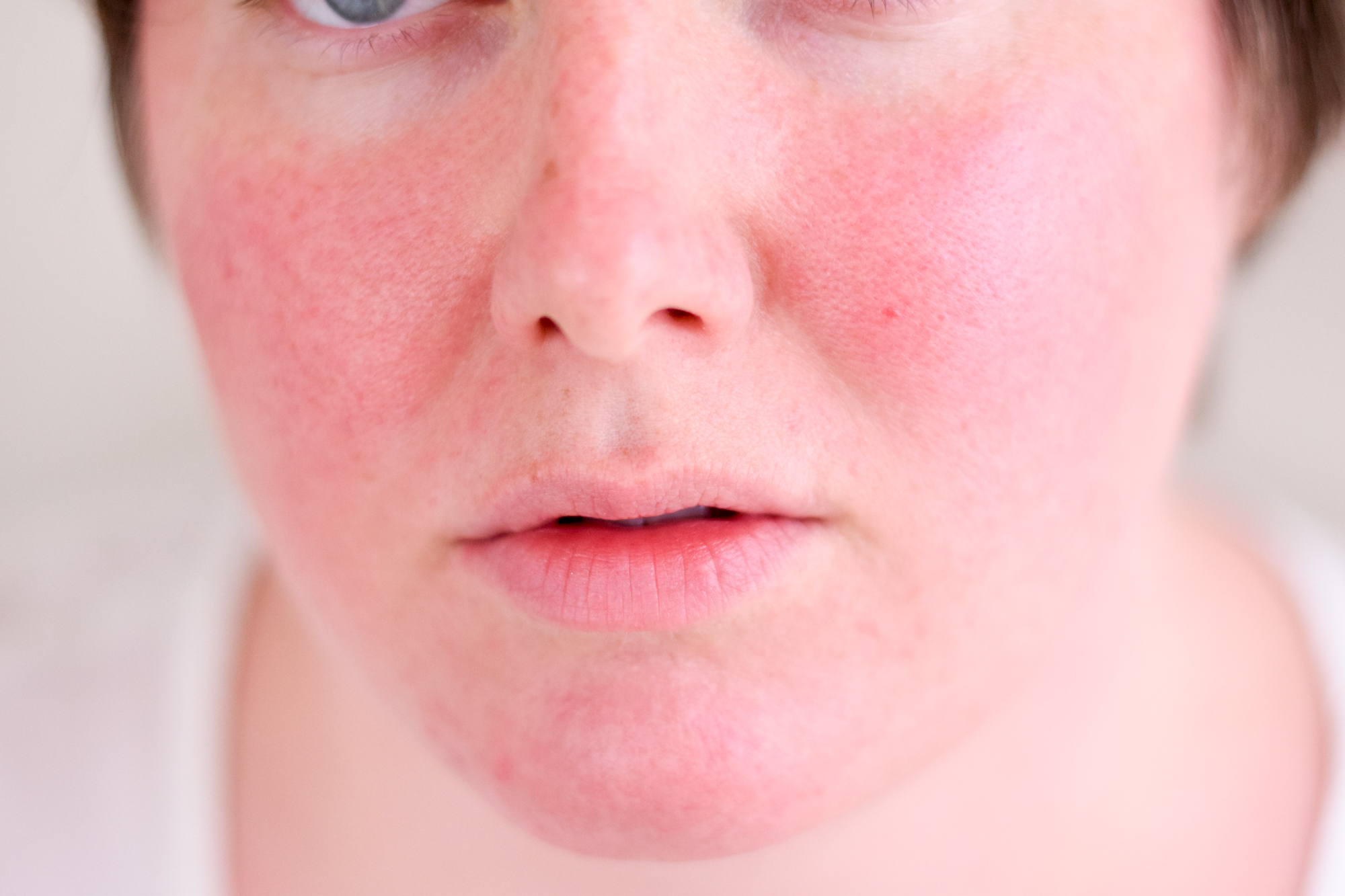 How to get rid of body odor – Tips to control, prevent the body odour advise