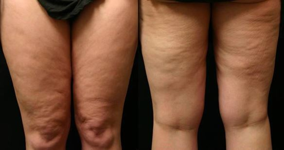 11 Top Exercises For Removing Cellulite From Hip And Legs
